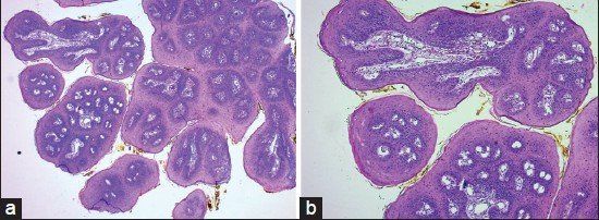 papilloma of tongue histopathology)