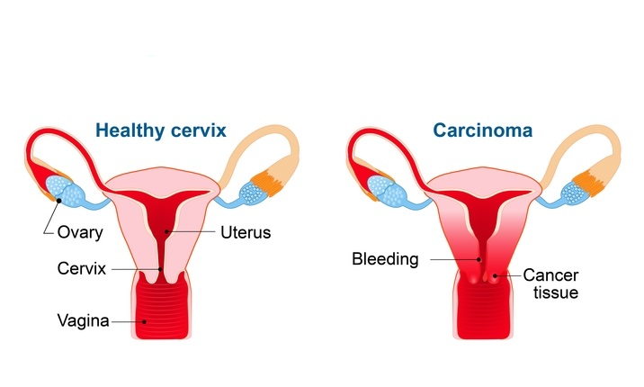 what is hpv cancer cells