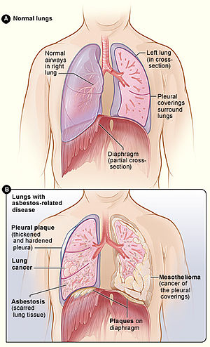 cancer pulmonar pleura)