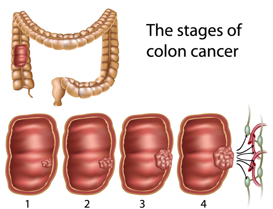 cancer colon bleeding)