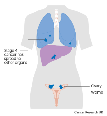 ovarian cancer fluid in lungs)