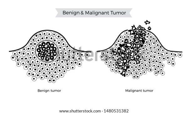 cancer vs benign
