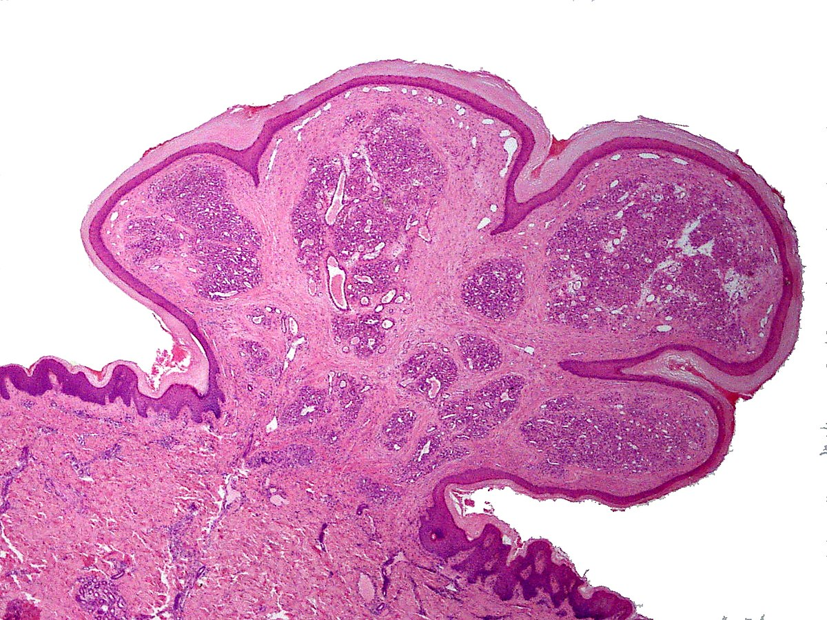tongue papilloma pathology outlines