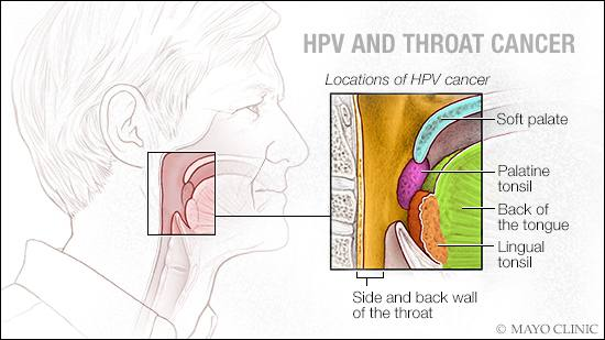 risk of throat cancer with hpv)