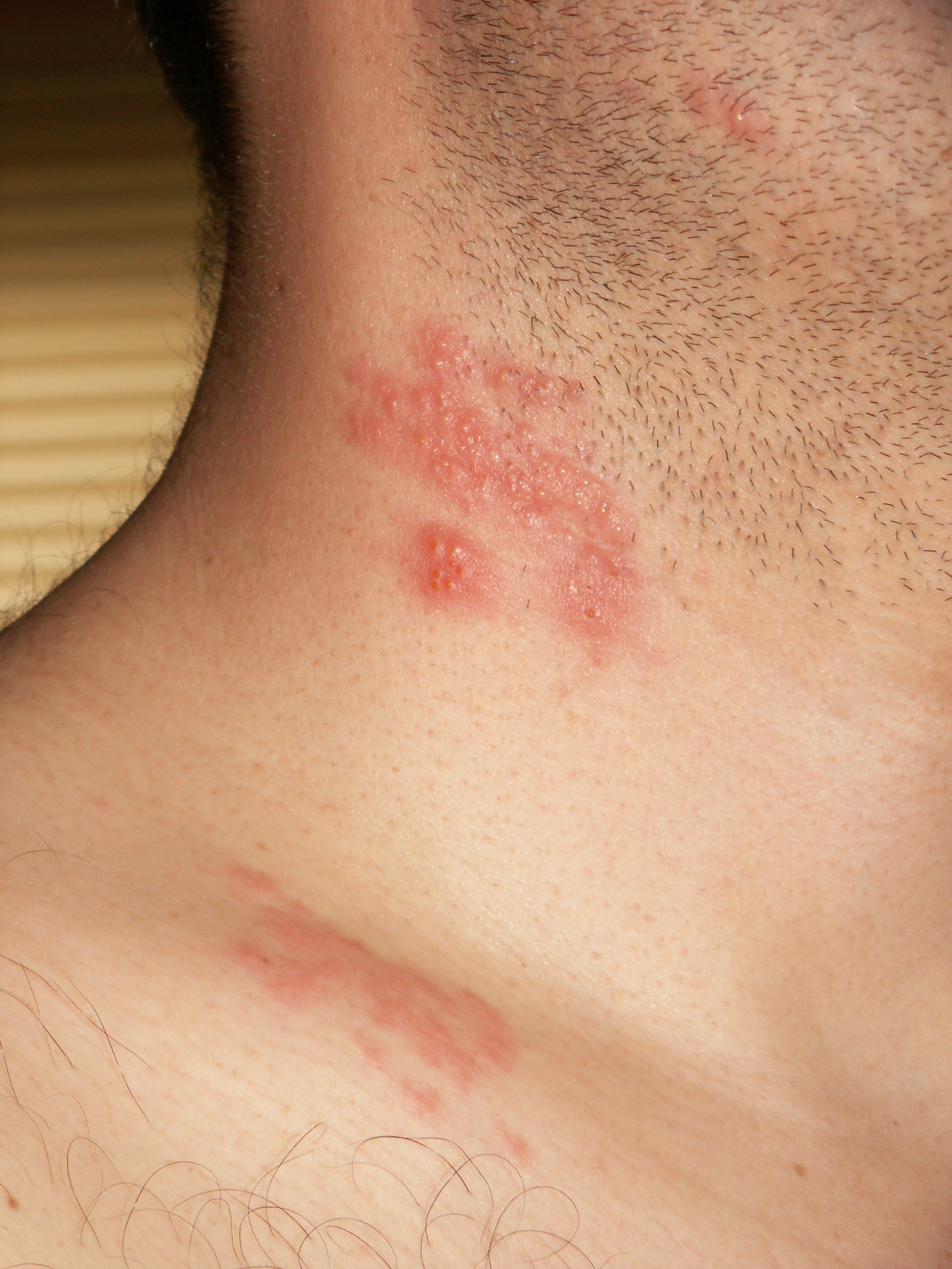 is shingles and hpv virus)