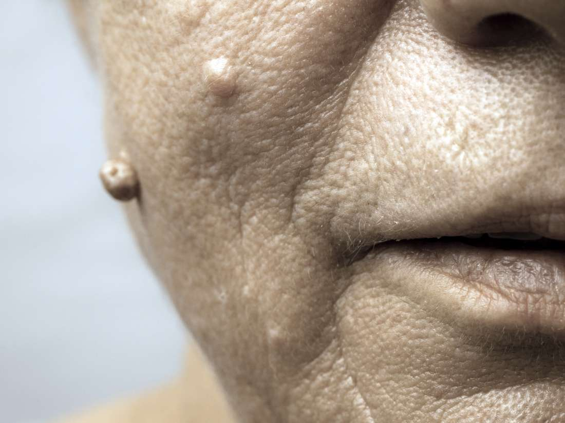 hpv face warts pictures)