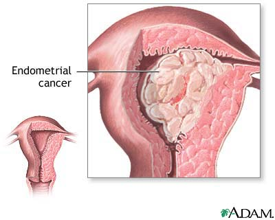cancer uterin manifestari
