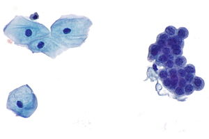 renal cancer urine cytology)