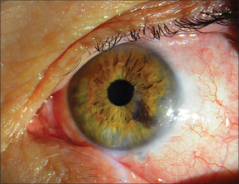 hpv eye infection
