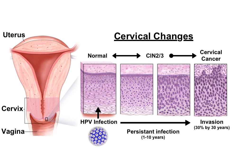hpv that causes cervical cancer hpv papillomavirus test