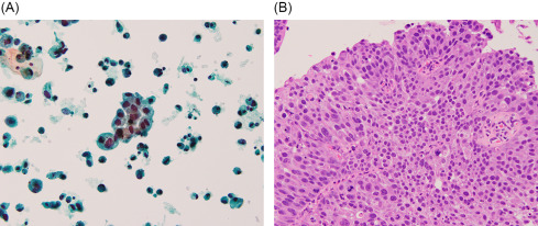 papillary urothelial lesion of low malignant potential
