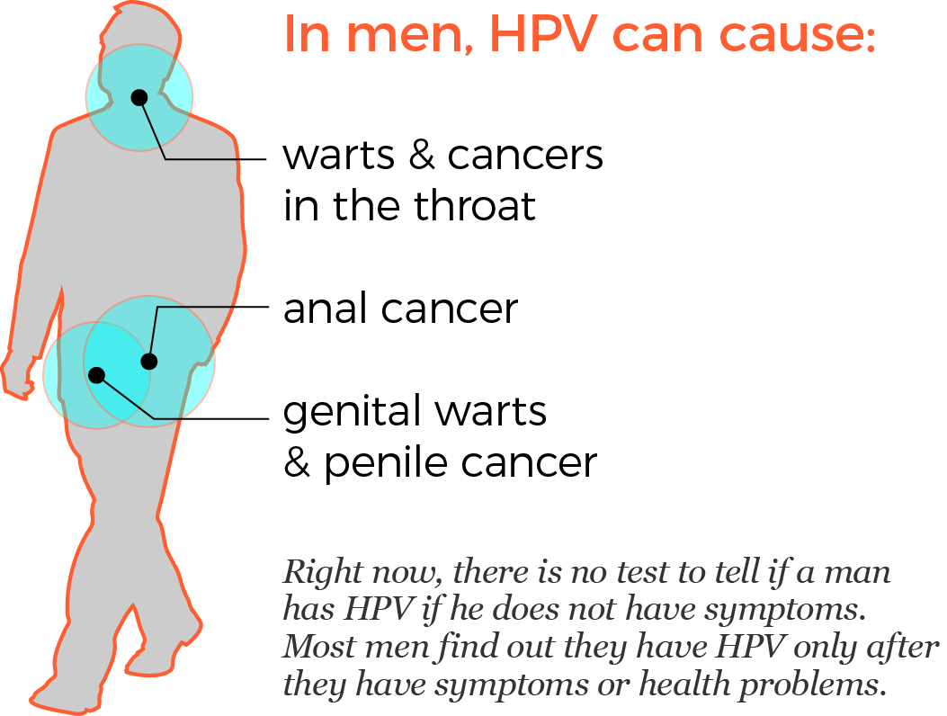 hpv and cancer male