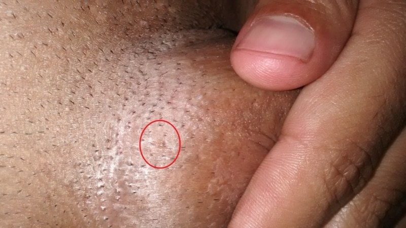 hpv warts male)