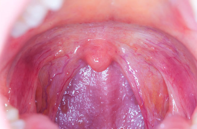 hpv and throat pain