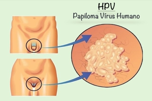 what is hpv virus and how do you get it