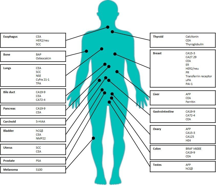 Blood Gene Expression Markers Predictive of Pain   Technology Networks