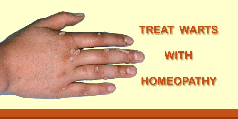 warts treatment with homeopathy)