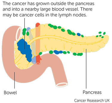 pancreatic cancer final stages