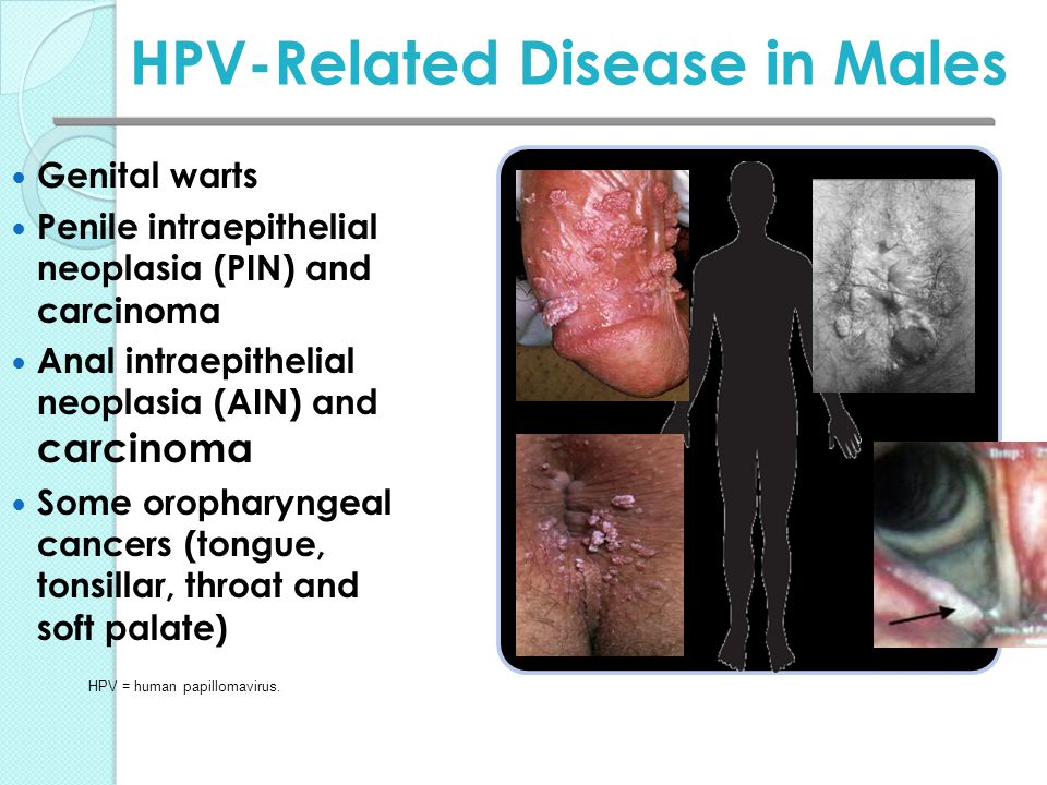 hpv warts and cancer)