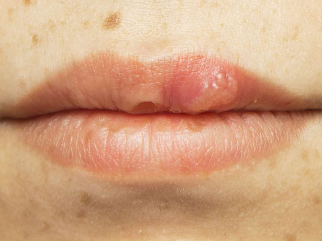 hpv lip swelling