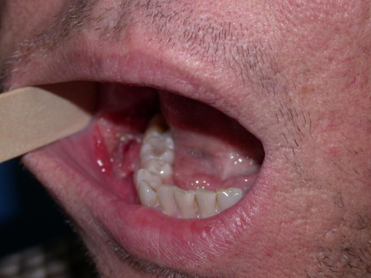 hpv on mouth
