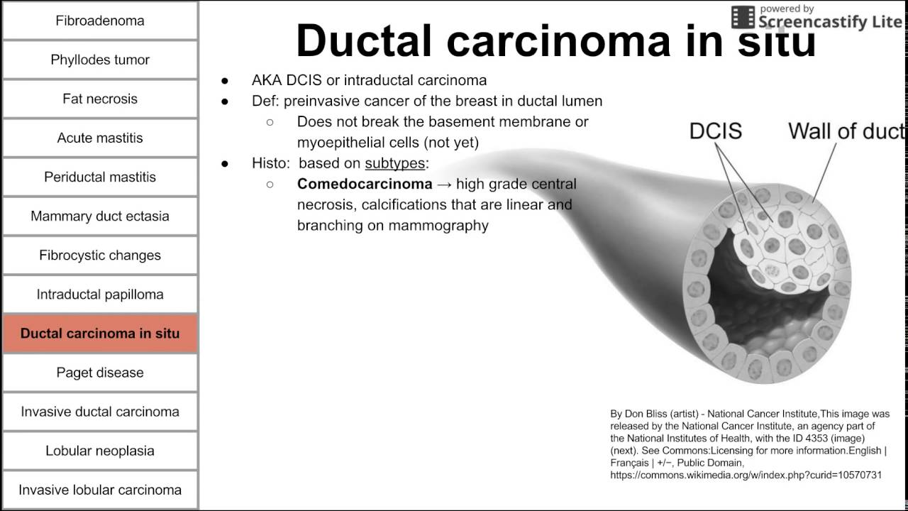 papilloma breast cancer symptoms hpv and ebv in head and neck cancer