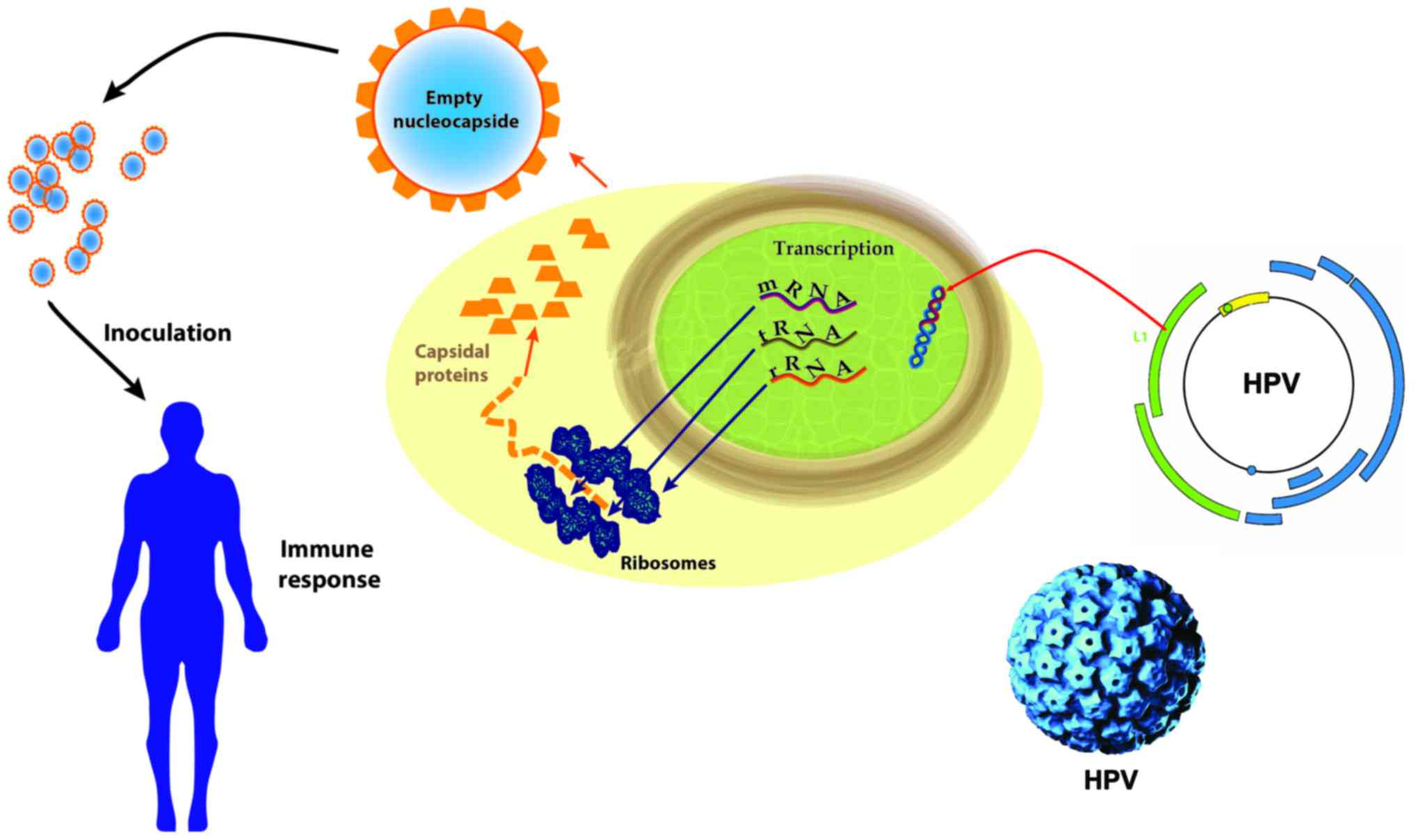 human papillomavirus (hpv) has been implicated in the pathogenesis of carcinoma of the