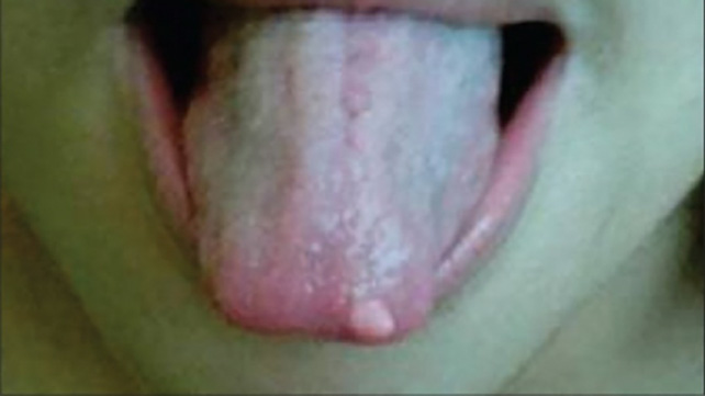 squamous papilloma tongue symptoms)