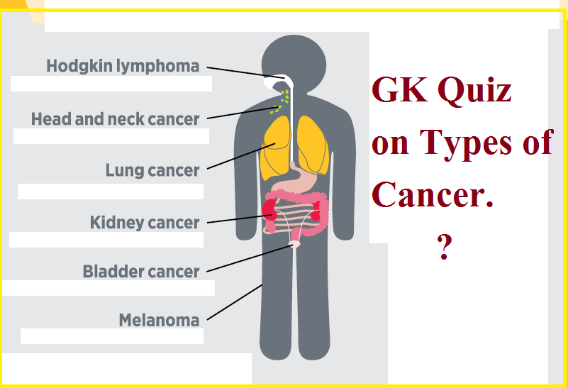 gastric cancer questions