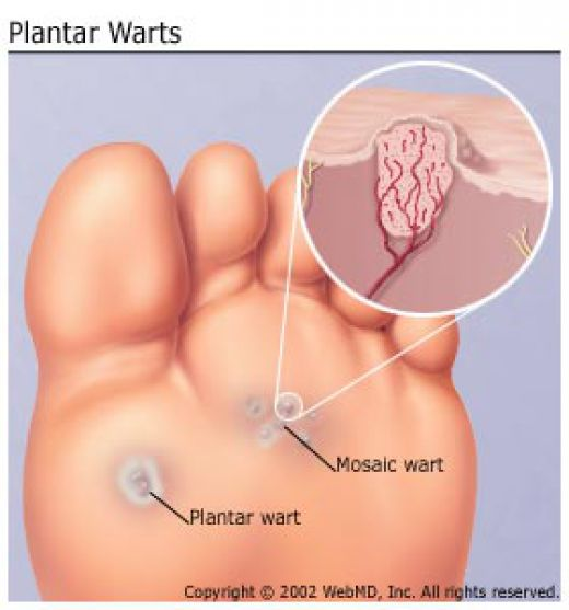 wart on foot is it contagious)