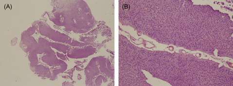 papillary urothelial neoplasm of low malignant potential pathology outlines)
