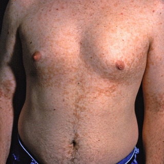 pictures of confluent and reticulated papillomatosis toxine que faire