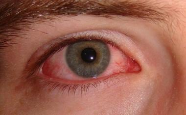 hpv eye infection)