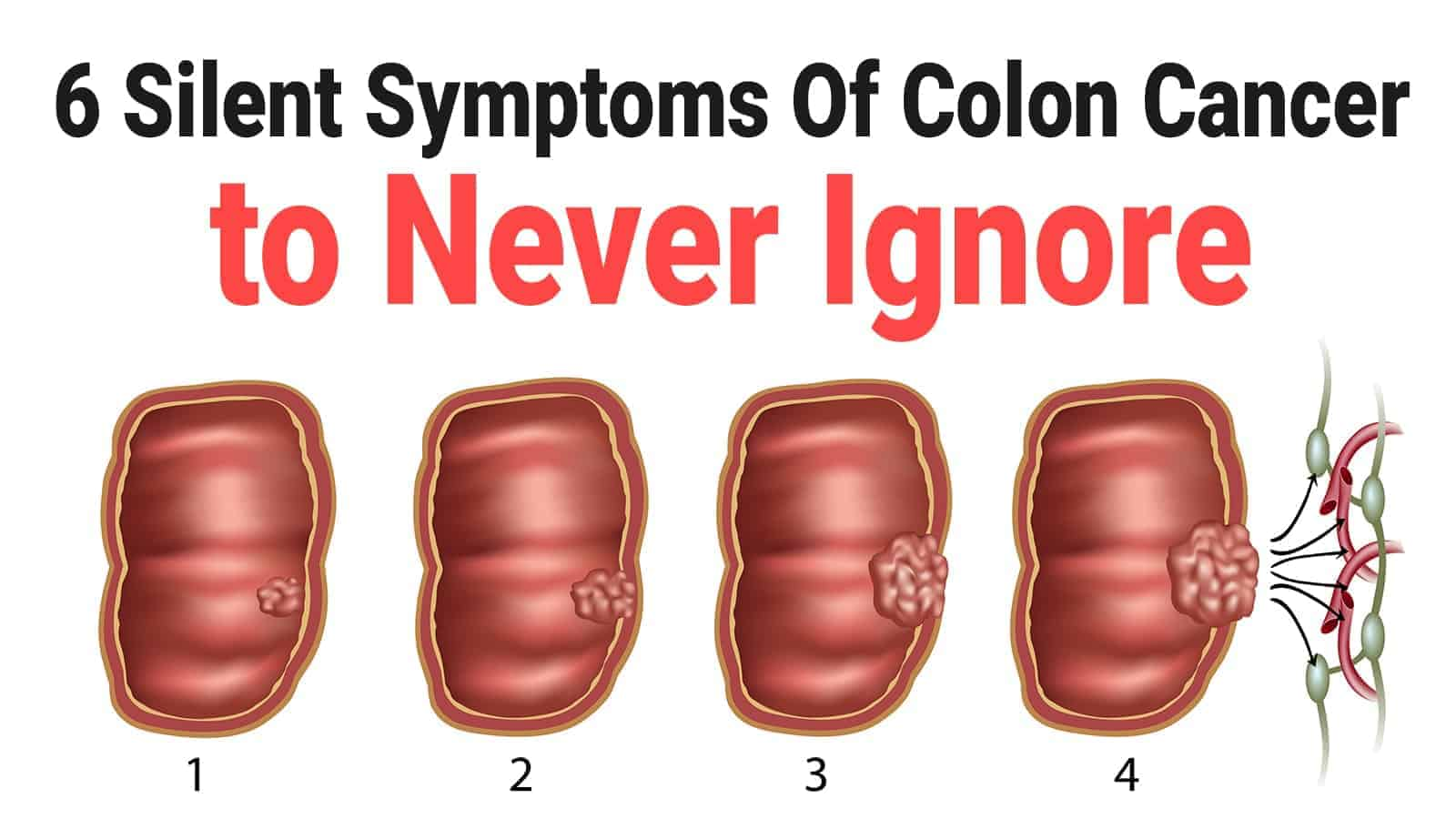 cancer colorectal be