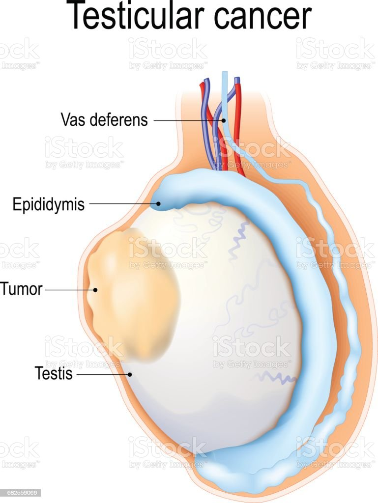 testicular cancer what is it)