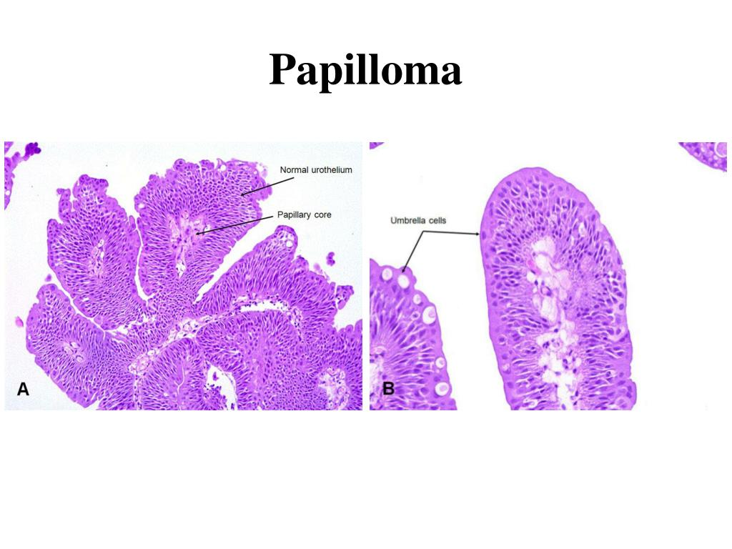 papilloma bladder hpv foot treatment