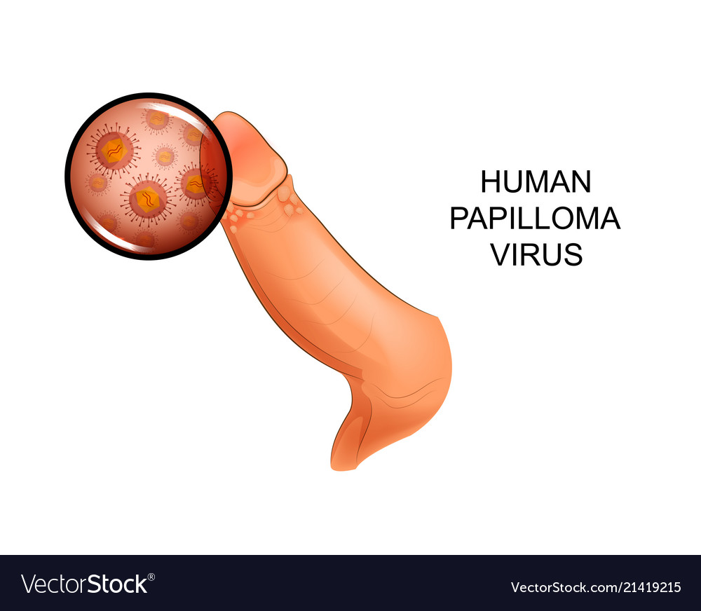 human papilloma virus male