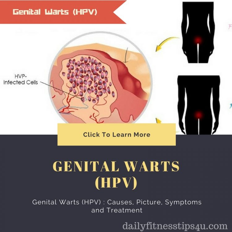 hpv causes symptoms and treatments