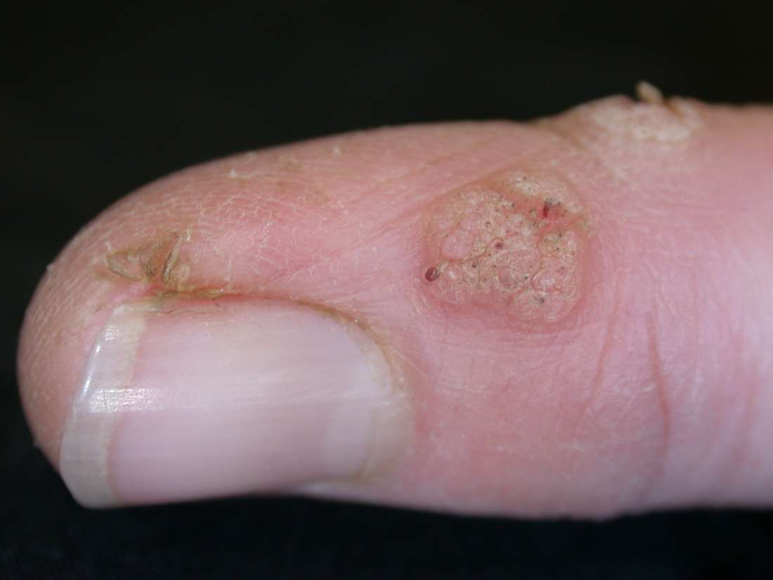 wart or viral infection of the skin