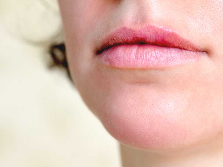 hpv skin tags in mouth
