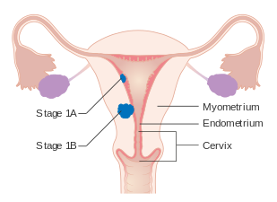 genetic cancer of the uterus)