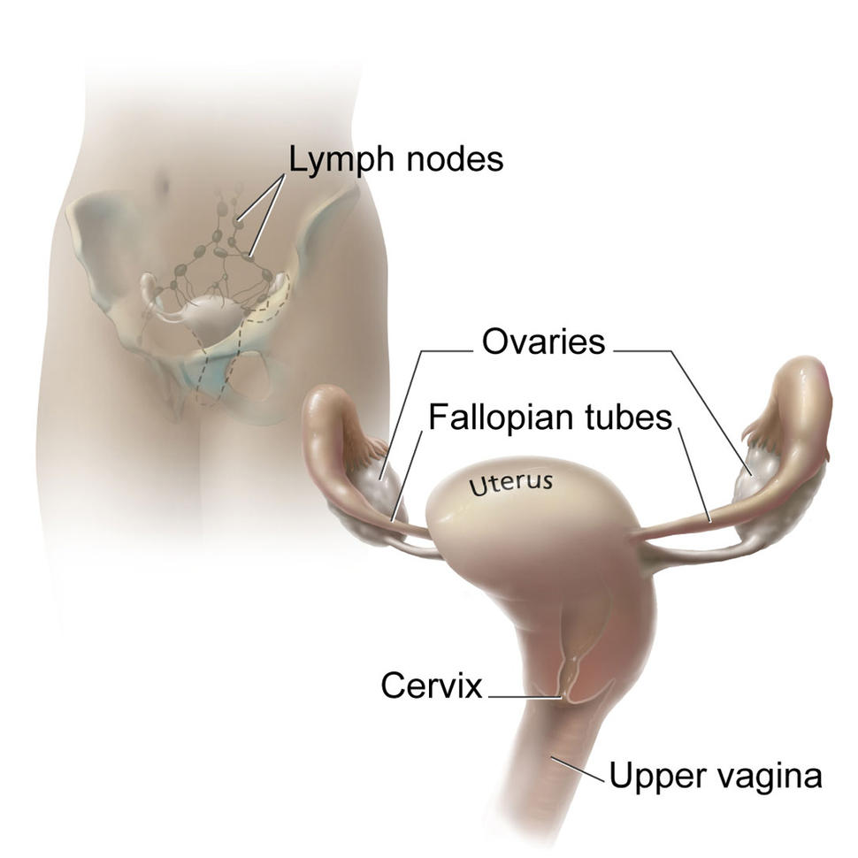 uterine cancer lymph nodes)