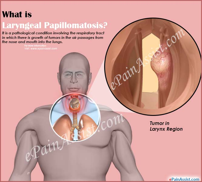 respiratory papillomatosis and its treatment