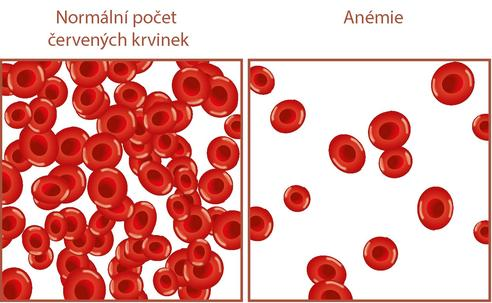 Blood sampling as a cause of anemia in a general ICU - a pilot study.