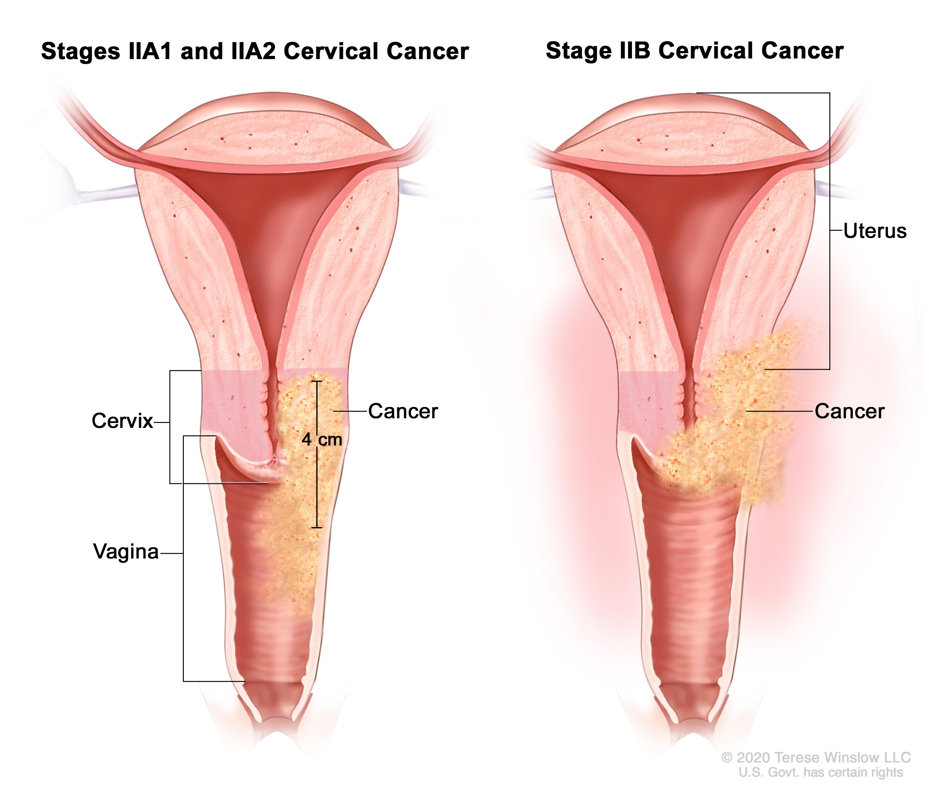 hpv cervical cancer removal hpv acronym meaning