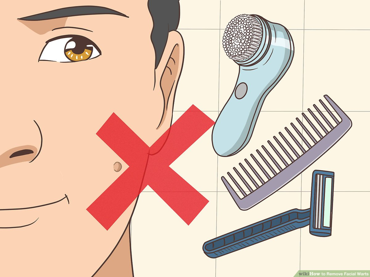 how to remove papilloma on face