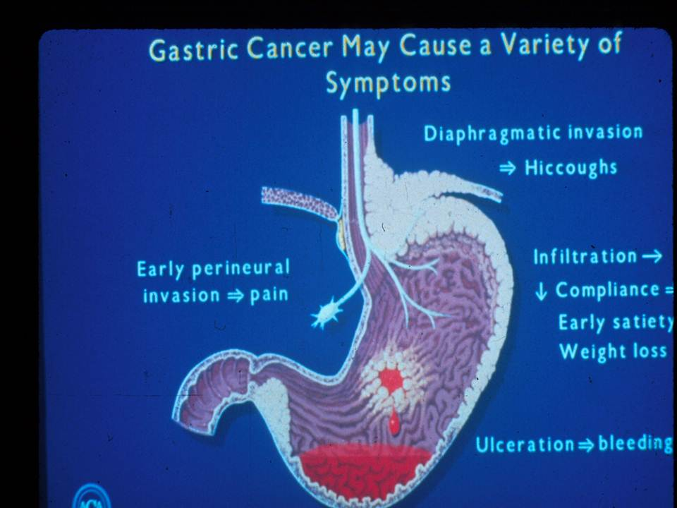 gastric cancer with carcinomatosis)