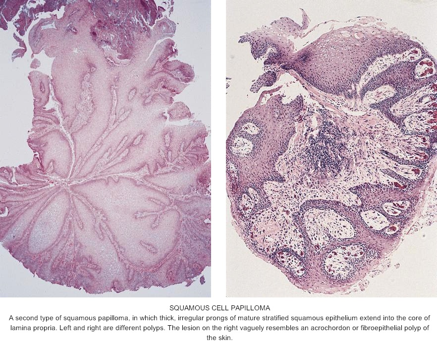 papilloma in the esophagus)
