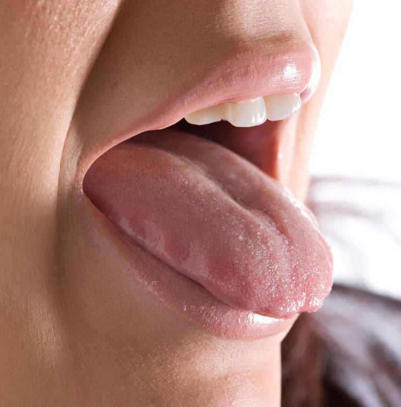 hpv warts on tongue treatment)