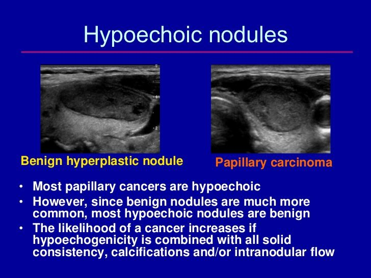 thyroid cancer benign nodules)
